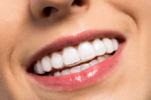 woman smiling with Invisalign braces