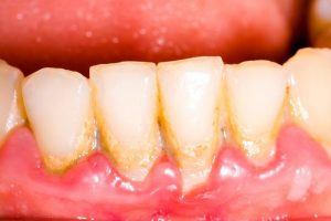 teeth and gums with tartar buildup