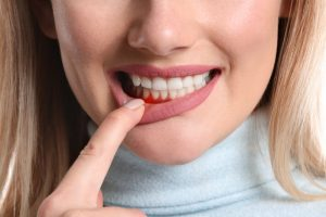 Woman showing signs of gum disease in Norwood