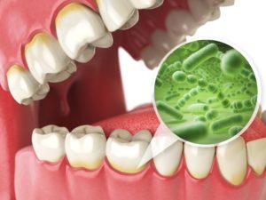 Model of gum disease at dentist in Norwood.